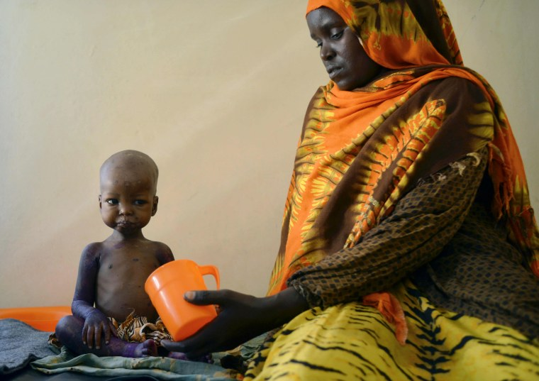 Image: A malnourished child is fed a special formula by her mother at a regional hospital in Baidoa town.
