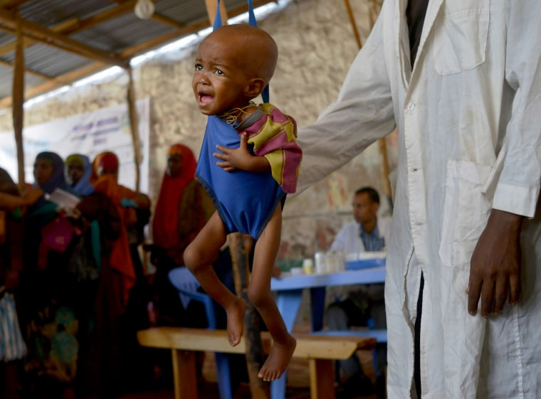 Image: A malnourished child is processed by an aid worker, March 15.