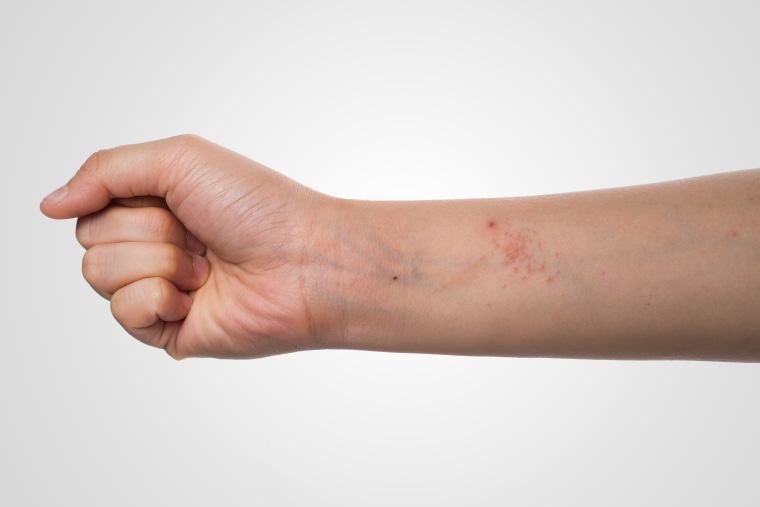 New Eczema Drug Dupixent Wins Fda Approval