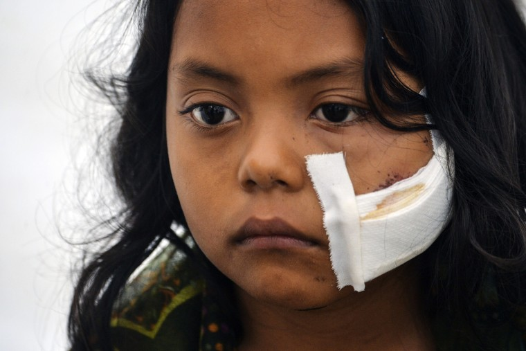 Image: A wounded girl waits for medical attention at a shelter in Mocoa