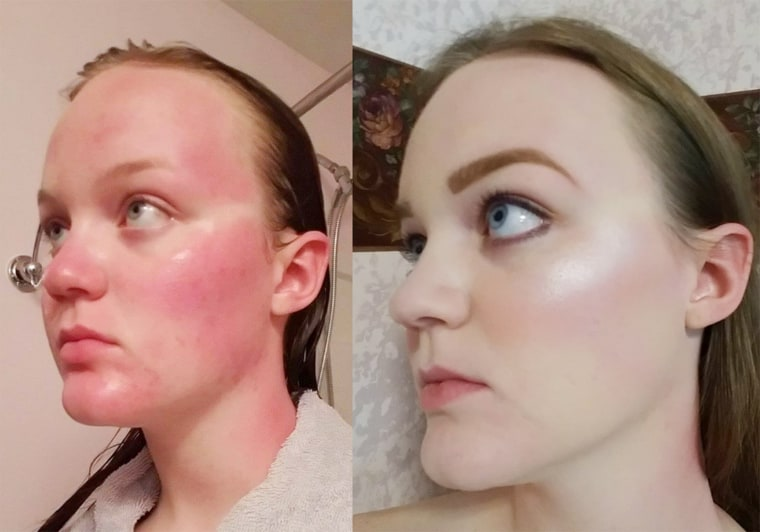 Too Faced Born This Way foundation covered my sunburn