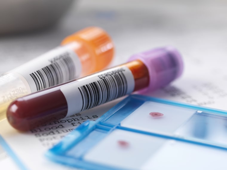 Image: Blood samples