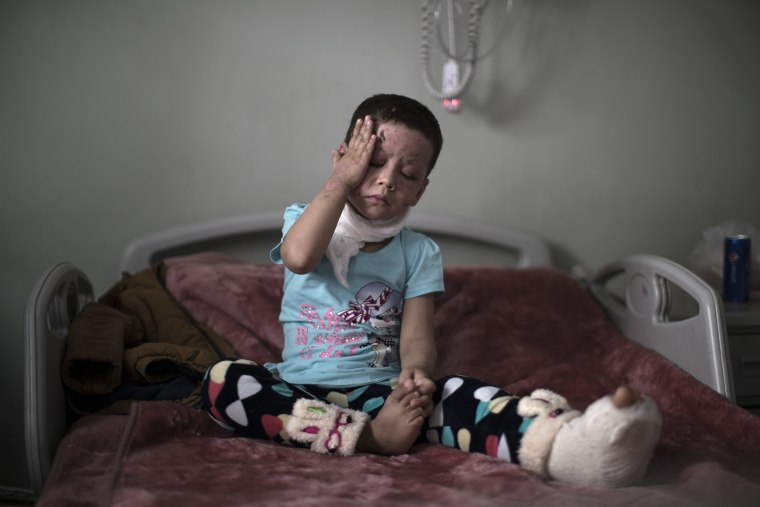 Image: Hawra, 4-years-old, who was badly burned in the March 17 airstrike in western Mosul