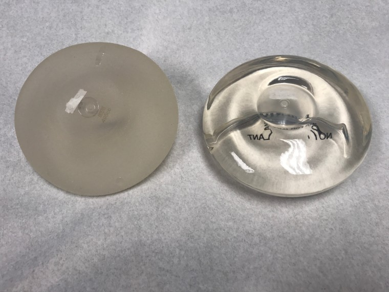 textured versus smooth breast implants