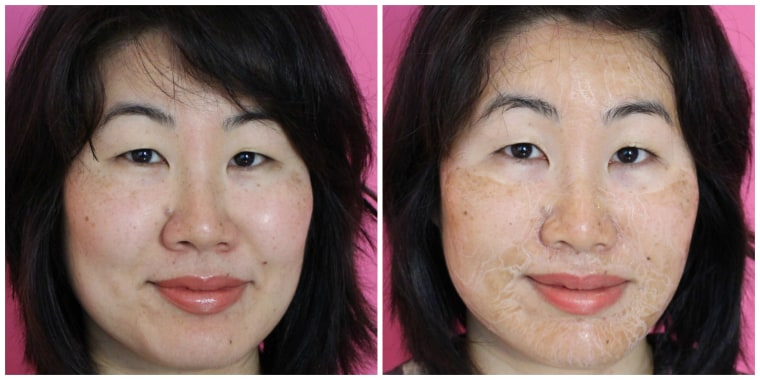 Hanacure Mask Before and After