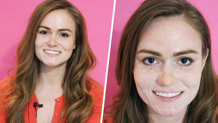 Hanacure Mask Before & After