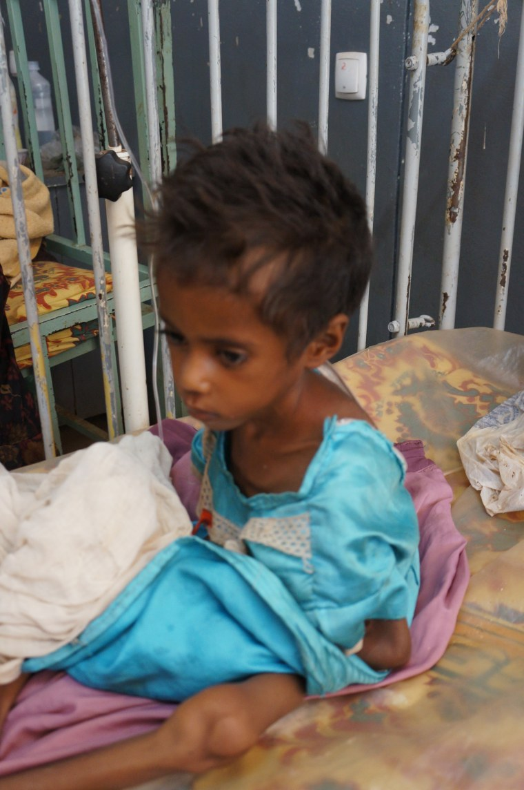 The malnourished six-year-old weighs only 15 pounds.
