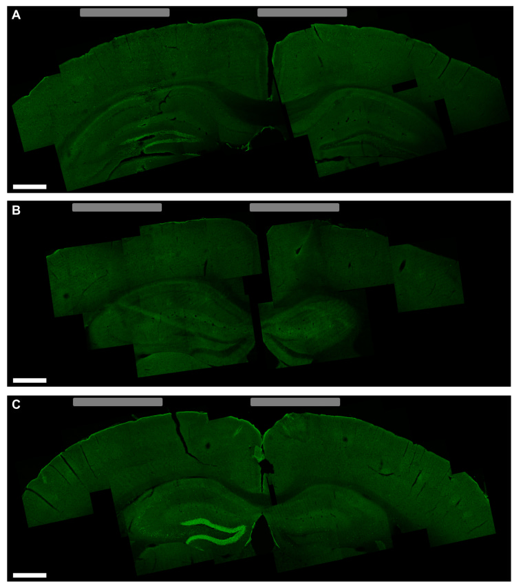 Image: An activated area in the mouse brain