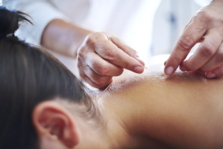 Image: Acupuncturist applying acupuncture needles to womans neck