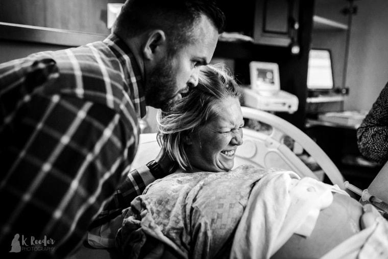 Photographer captures photos of baby head molding, cone head