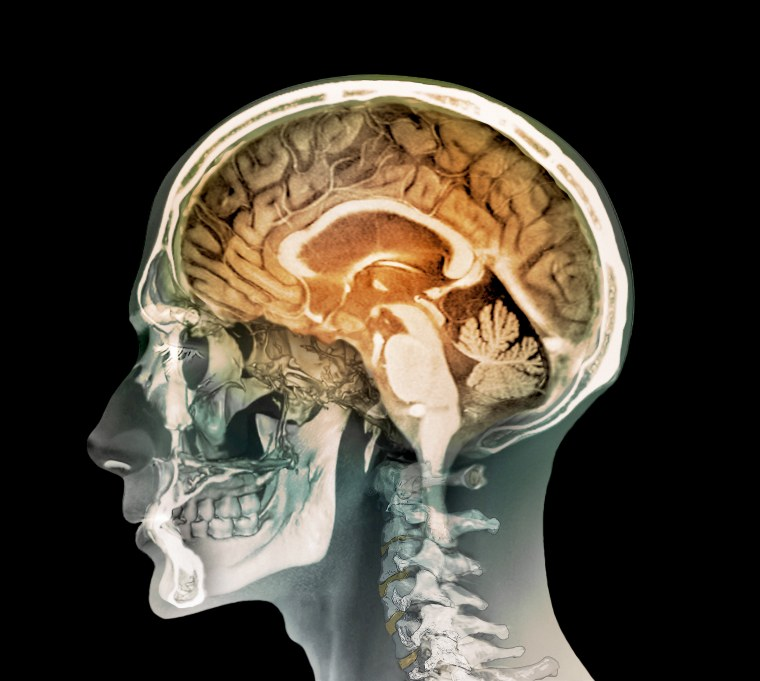 Image: Human Head, MRI and 3D CT scans