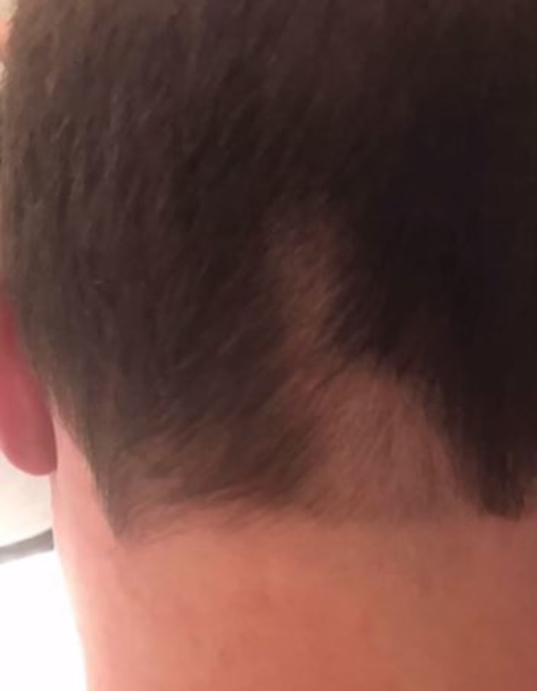 Dylan's husband Brian Fichera now has a bald spot on the back of his head.
