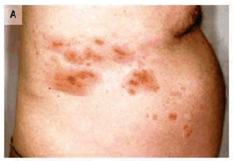 Image: Herpes Zoster, which is often called shingles