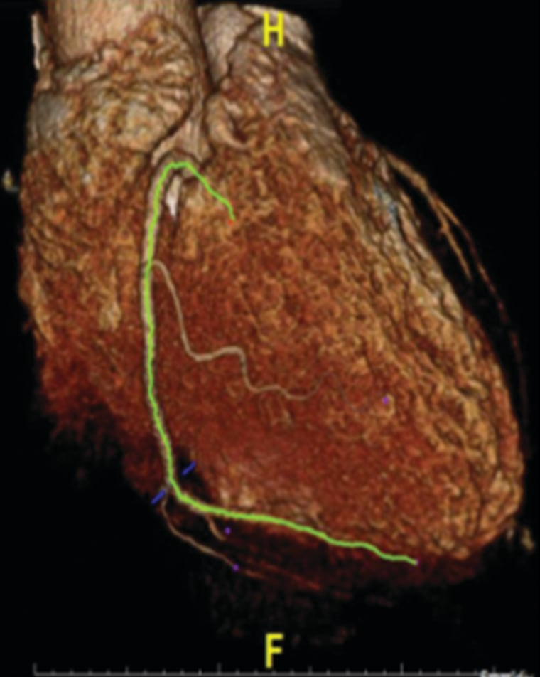 A newly developed imaging method identifies inflamed artery lesions that pose the most risk to patients.