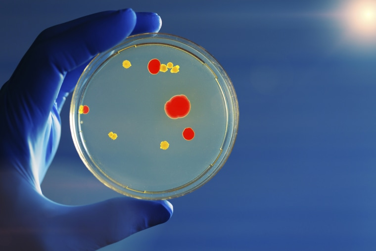 Bacterium growing on petri dish