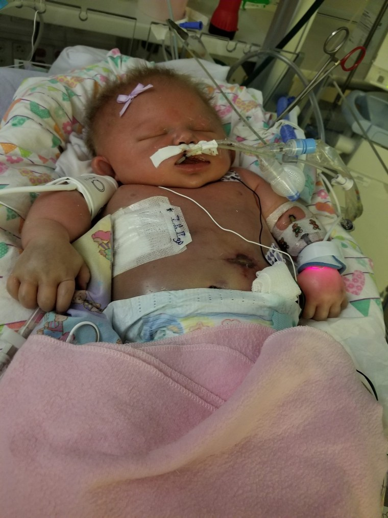 Baby dies of meningitis HSV-1 that may have been passed by a kiss
