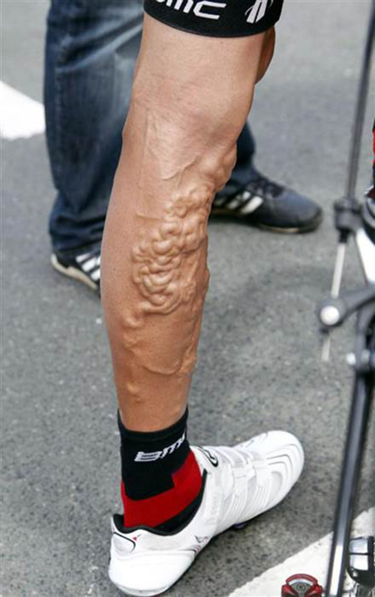 American cyclist George Hincapie had a serious case of varicose veins during the 2011 Tour de France.