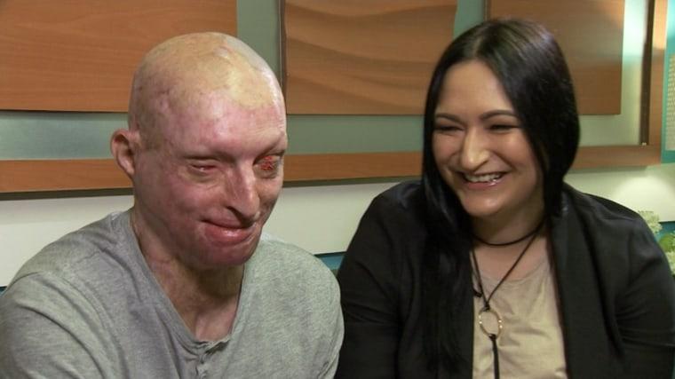 Acid attack victim Daniel Rotariu and girlfriend Anna Catanga