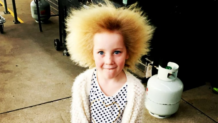 Shilah Yin has uncombable hair syndrome