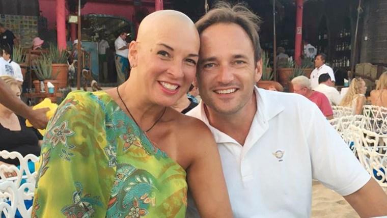 Margaret Staib, who has alopecia areata.