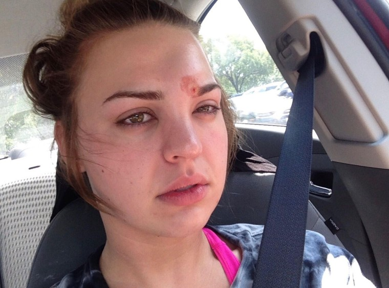 It took several rounds of IV antibiotics to treat the cellulitis Katie Wright got after a dirty eyebrow spoolie introduced staph to her hair follicle.