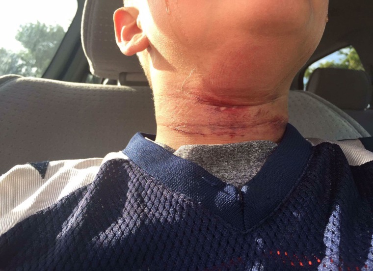 Image: Eight-year-old boy who was treated for rope burns in Claremont, New Hampshire