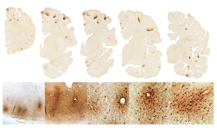Image: the classic features of CTE in the brain of Mr. Hernandez