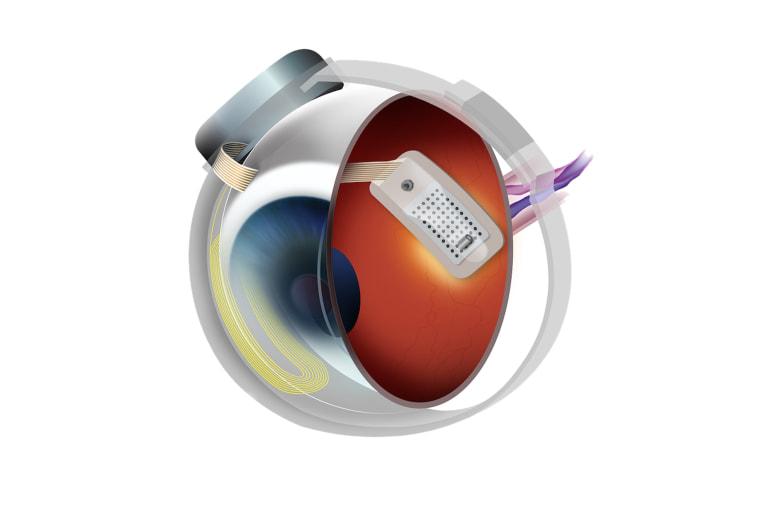 Image: Bionic Eye