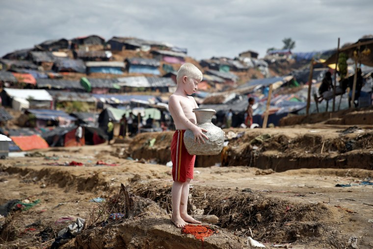 Image: An albino Rohingya refugee poses for a picture in Cox's Bazar, Bangladesh