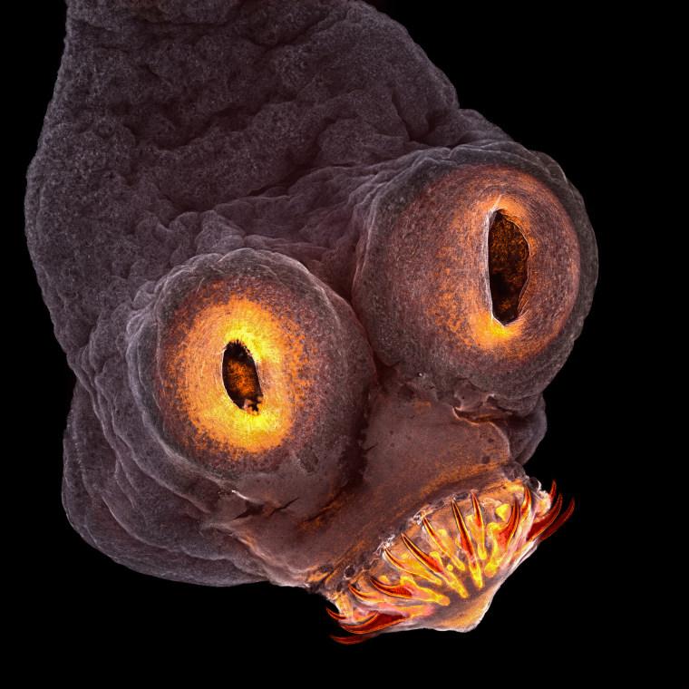 4th Place Teresa Zgoda Rochester Institute of Technology Rochester, New York, USA Taenia solium (tapeworm) everted scolex
