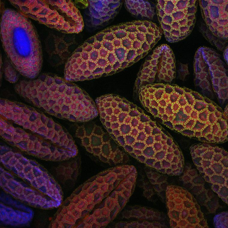 University of Southampton/University Hospital Southampton, Biomedical Imaging Unit Southampton, United Kingdom Lily pollen