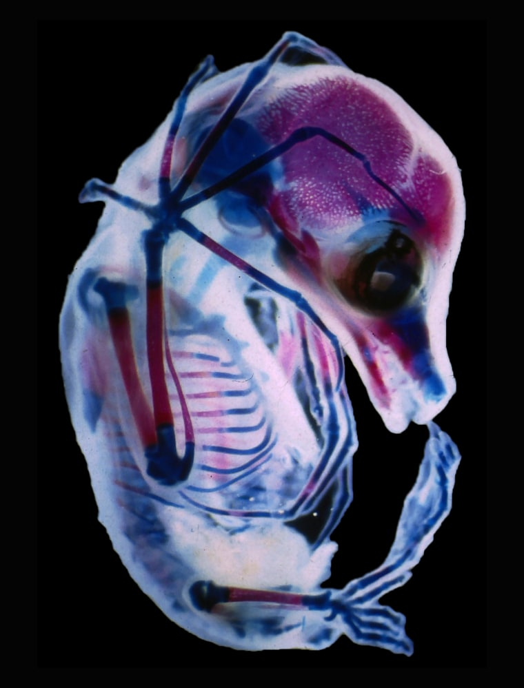 Dr. Rick Adams  University of Northern Colorado, Department of Biological Sciences  Greeley, Colorado, USA  3rd trimester fetus of Megachiroptera (fruit bat)   Darkfield, Stereomicroscopy
