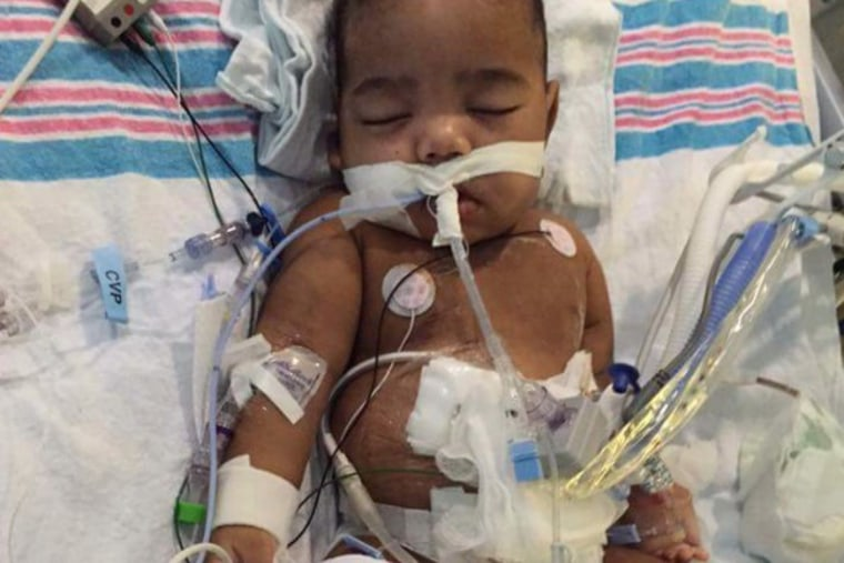 Carmellia Burgess' son, Anthony, was born without kidneys.