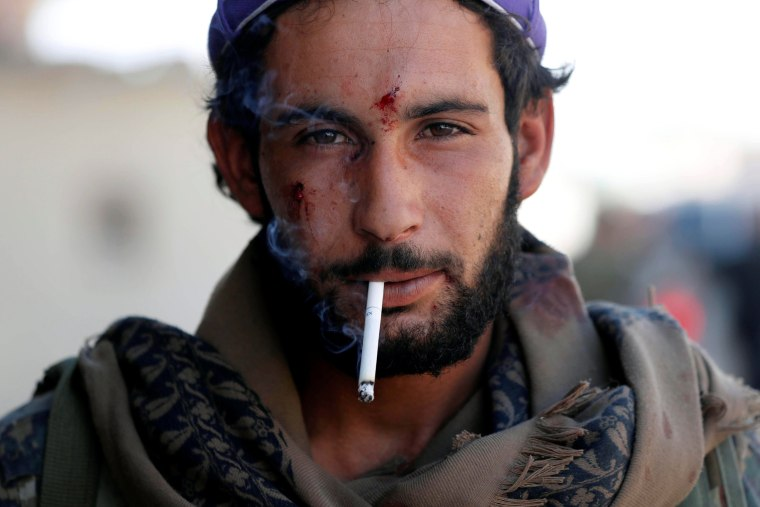 Image: A member of Syrian Democratic Forces who was wounded during a battle with Islamic State militants smokes a cigarette in Raqqa