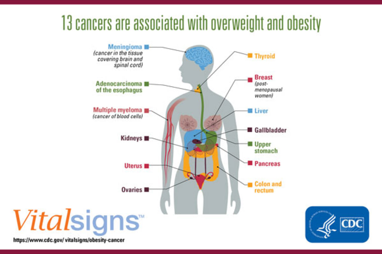 Obesity is a major cause of cancer