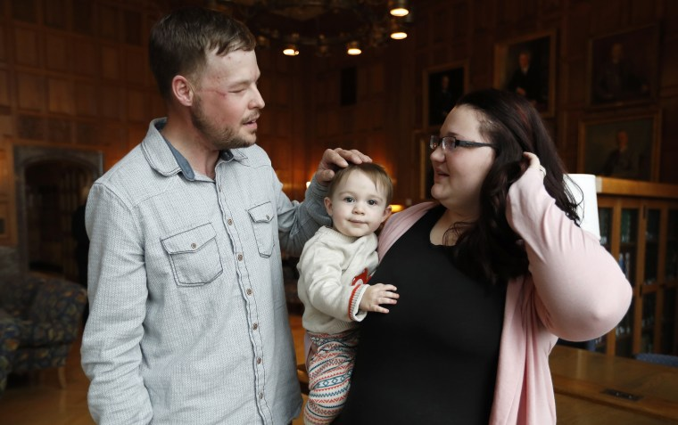 Lilly Ross, right, holds her 17-month-old son Leonard as she talks with face transplant recipient Andy Sandness, left, after their first meeting at the Mayo Clinic, Friday, Oct. 27, 2017, in Rochester, Minn.