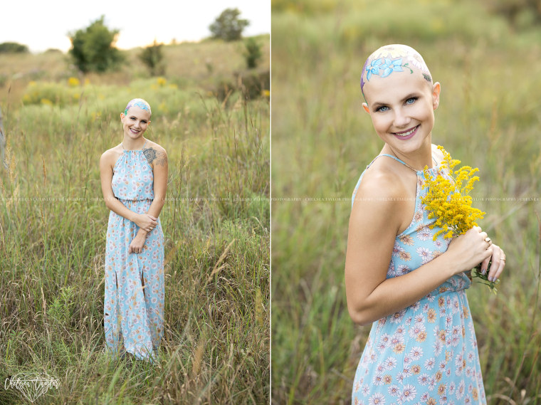Teen embraces hair loss in senior photos