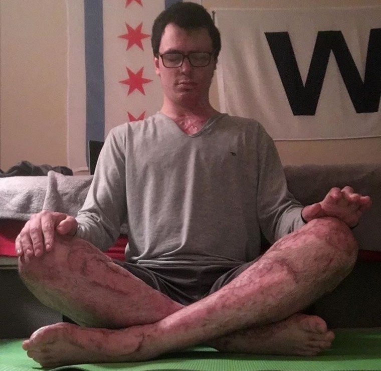 Doing yoga helps Zanca as he recovers from burns.