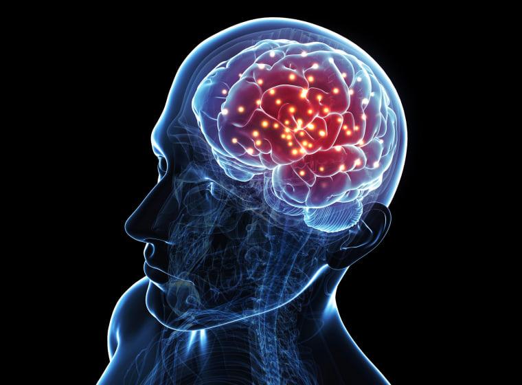 Image: Brain activity