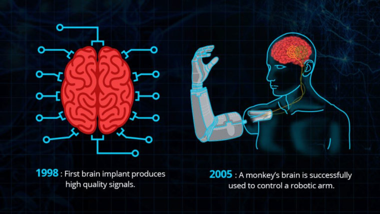 Image: Brain interfaces