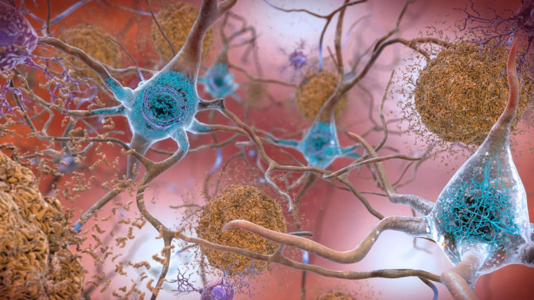 A new study projects that 46.7 million Americans have evidence they are at risk of Alzheimer's
