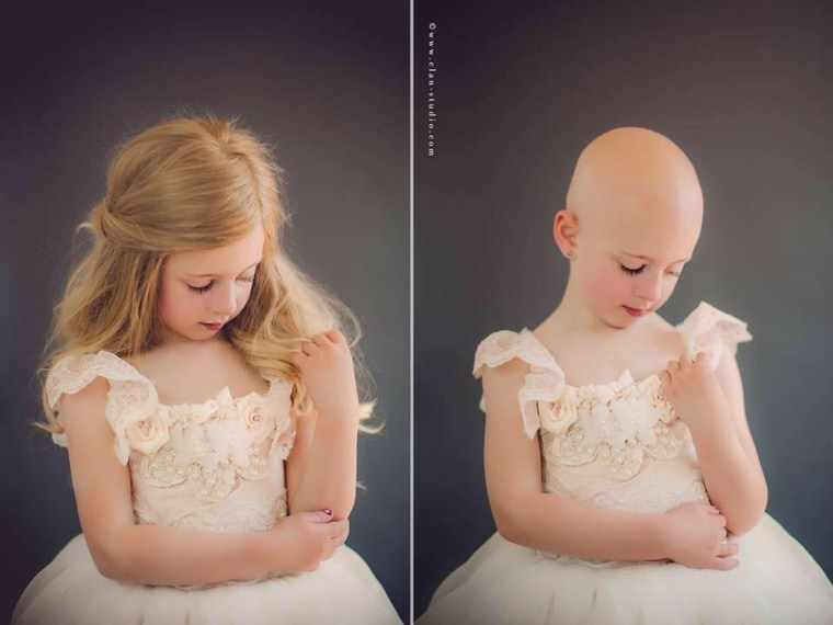 While Riley was born with a full head of hair, she was completely bald by 15 months because of alopecia.