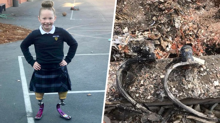 10-year-old who lost her prosthetic legs in her mom's home, which was burned down in the Tubbs fire earlier this year.