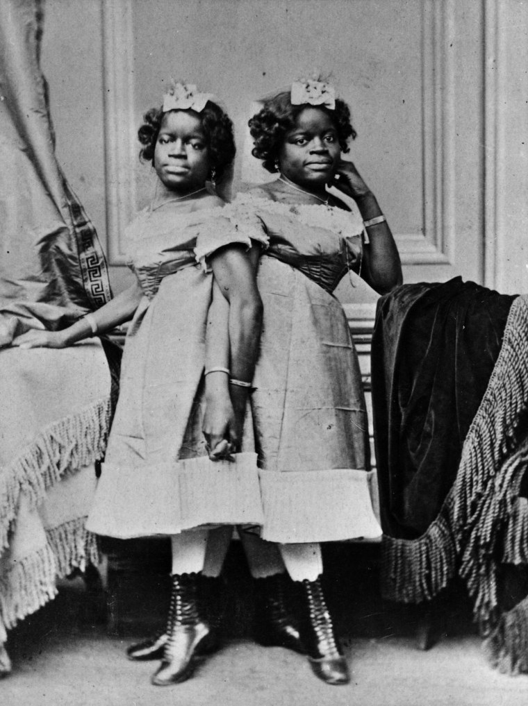 Millie and Christine McKoy, a pair of conjoined twins known as the 'Two-headed Nightingale', circa 1874.