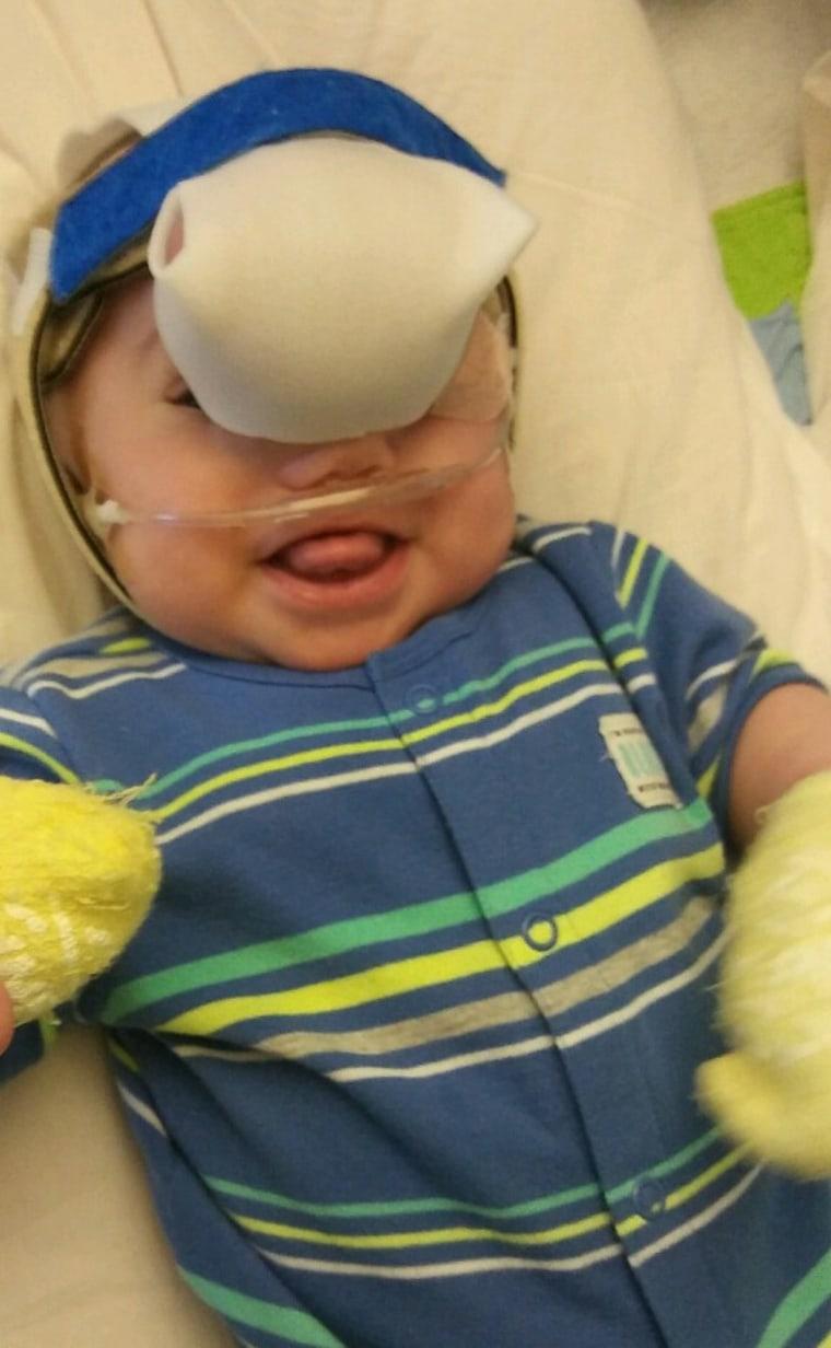 Zak Riegel was born with an encephalocele, a rare birth defect