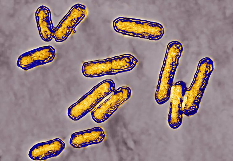 Image: Listeria