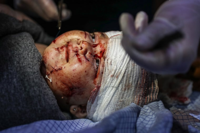 Image: At least 25 people killed in government air raids in Eastern Ghouta