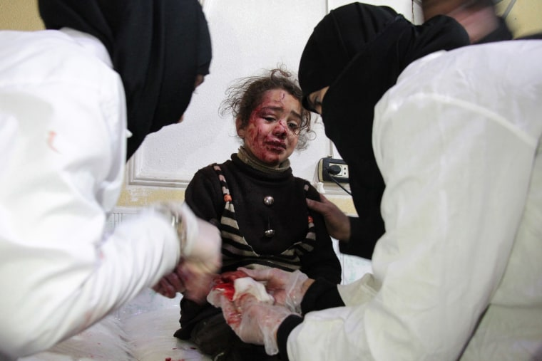 Image: A Syrian girl who was injured in air strikes cries as she receives treatment