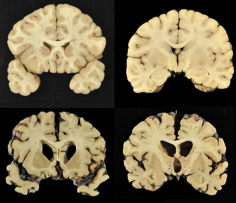 Sections from a normal brain, top, and from the brain of former University of Texas football player Greg Ploetz, bottom, in stage IV of chronic traumatic encephalopathy.