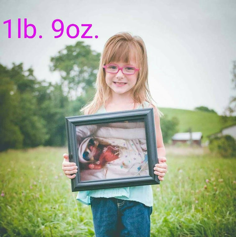 Even though she was born a preemie, Claire Michener has thrived and is a healthy, independent girl.